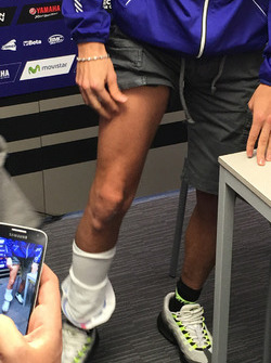 Valentino Rossi shows his leg