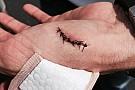Ragan racing wounded at Darlington
